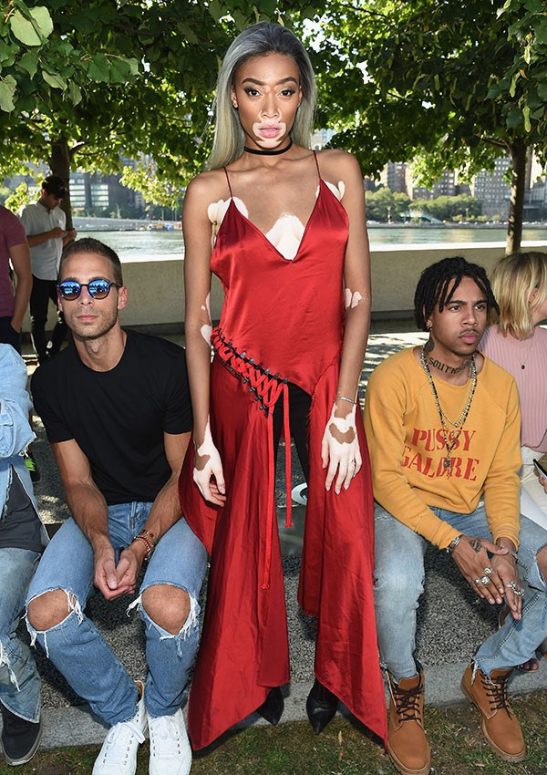 Winnie Harlow na fila A do desfile de Kanye West, em setembro (Foto: Getty Images)